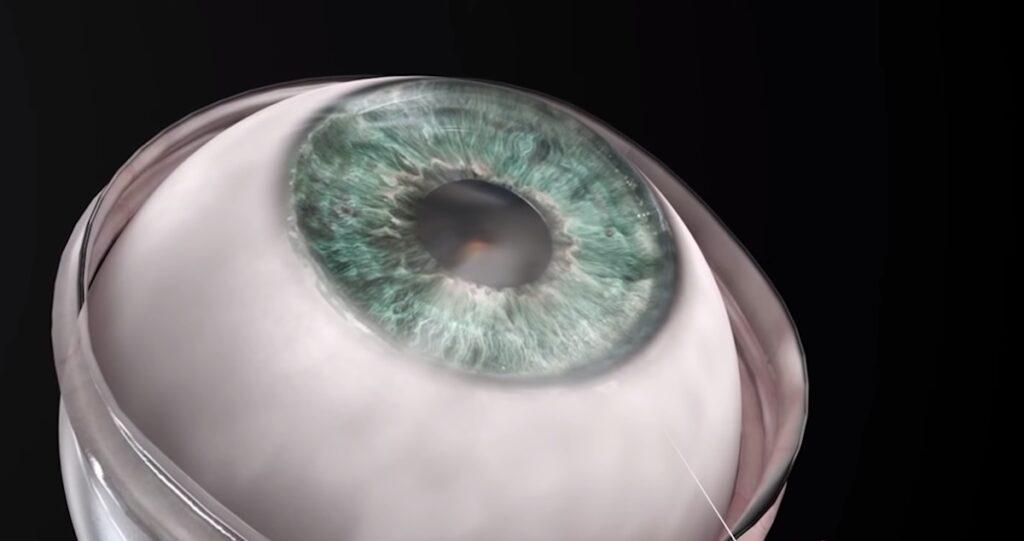 искусственный имплант CorNeat
